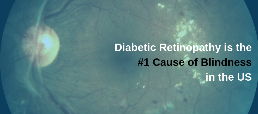 How Diabetes Affects the Eyes