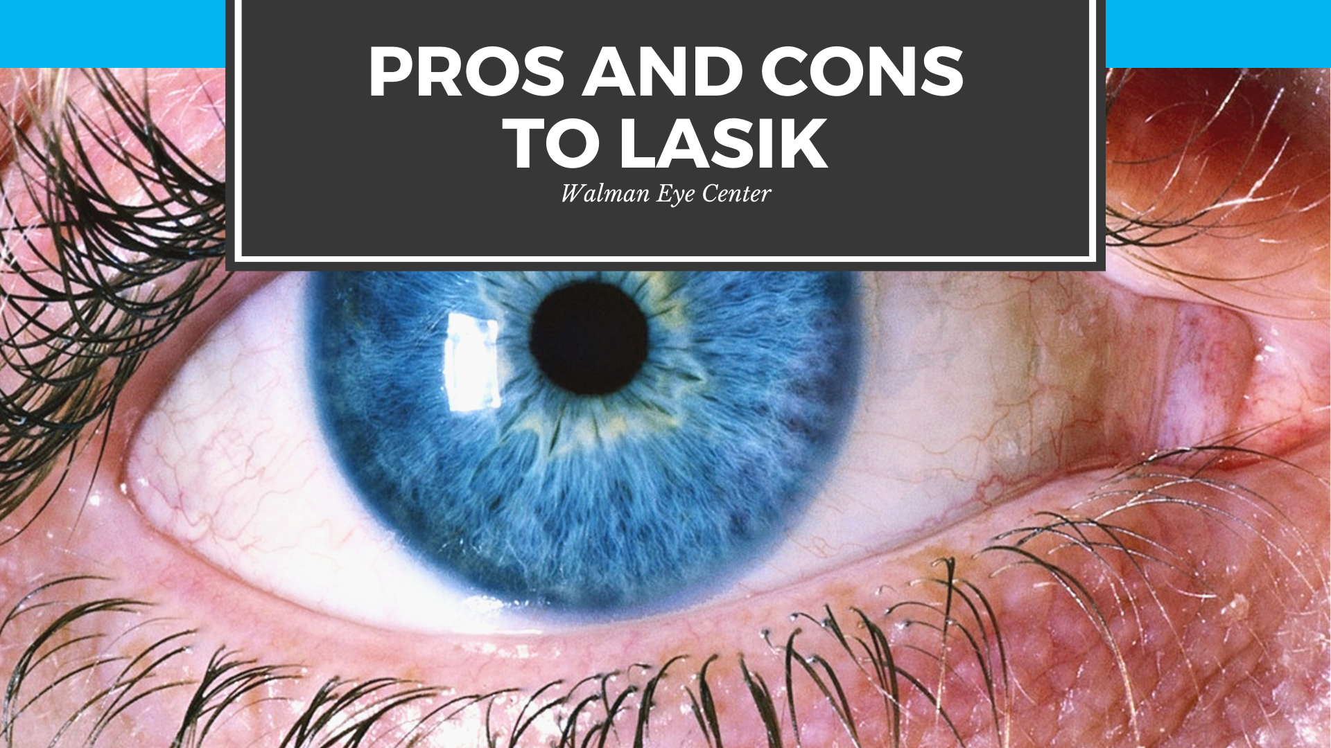 Pros and Cons to LASIK