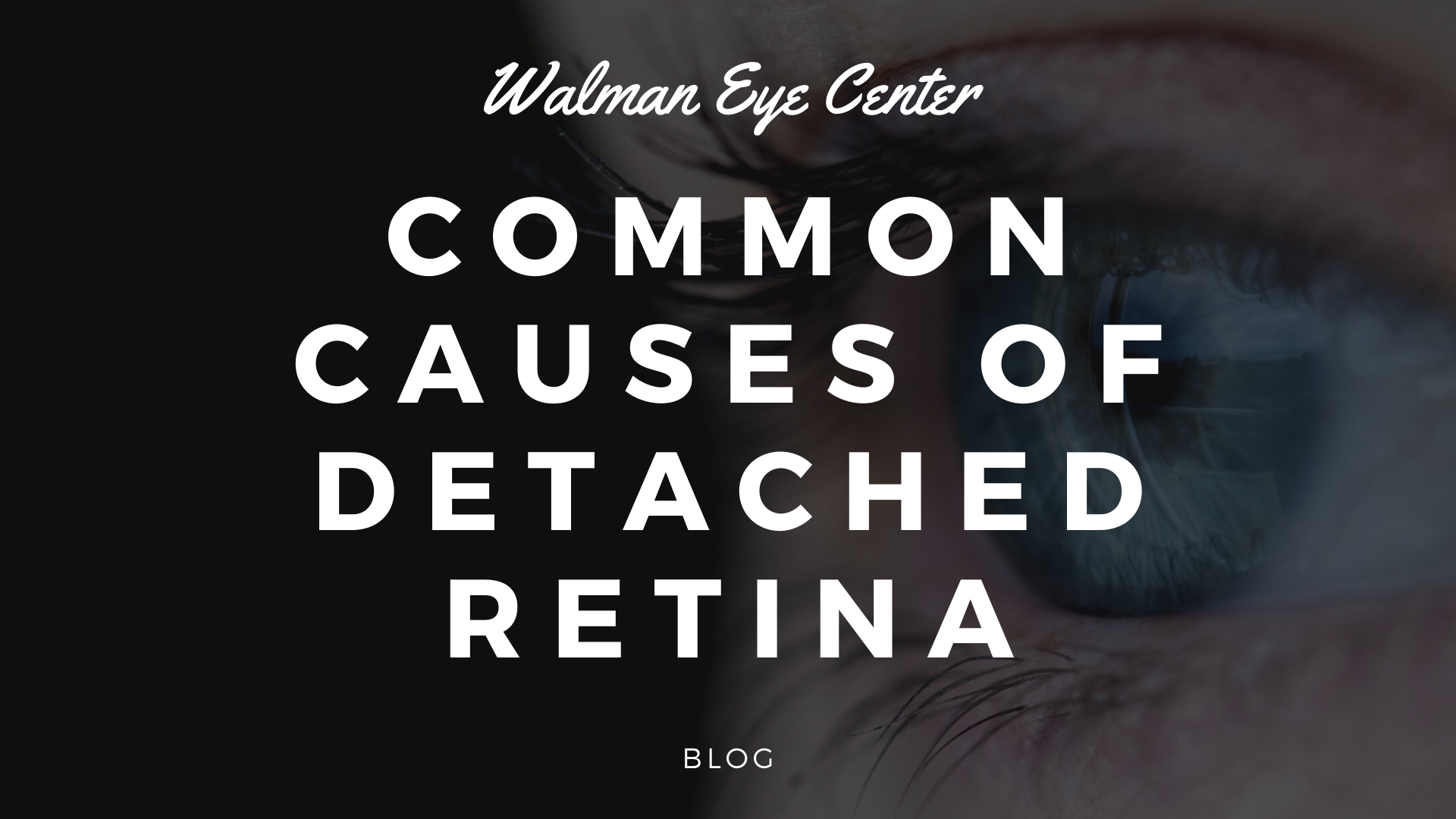 COMMON CAUSES OF DETACHED RETINA